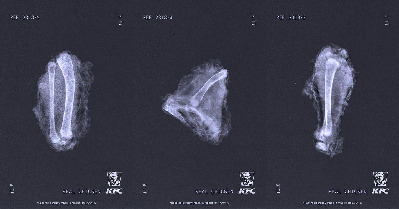 Chiến dịch sáng tạo: KFC chụp X quang gà rán để chứng minh chất lượng sản phẩm